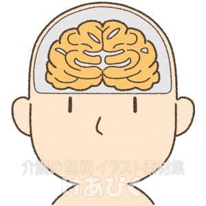 アルツハイマー型認知症の萎縮した脳のイラスト