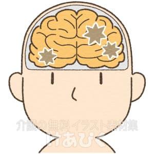 アミロイドβペプチドが蓄積している脳のイラスト