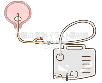 膀胱留置カテーテル(名称無し)のイラスト