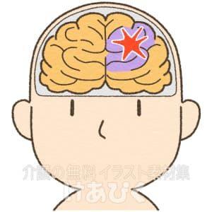 脳出血・脳梗塞を起こした脳のイラスト