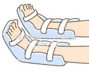 尖足予防(装具)のイラスト