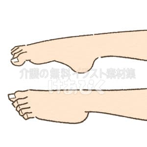 尖足のイラスト