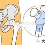 大腿骨部位のイラスト
