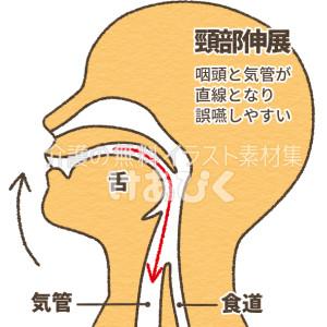 誤嚥しやすい頸部伸展の図解イラスト