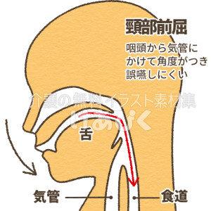 誤嚥しにくい頸部前屈の図解イラスト