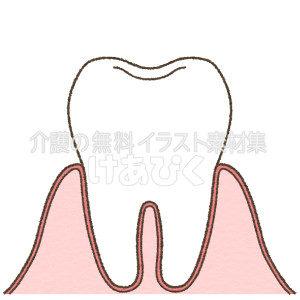 歯の断面図のイラスト